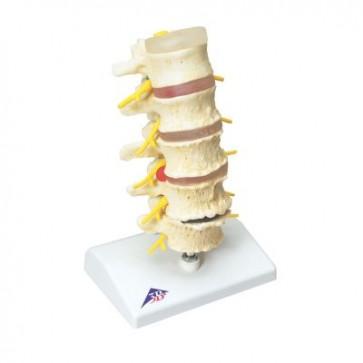 Faze prolapsa diska i degeneracije kralježaka