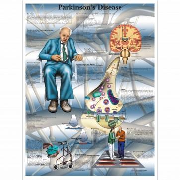 Anatomy chart - Parkins Disease